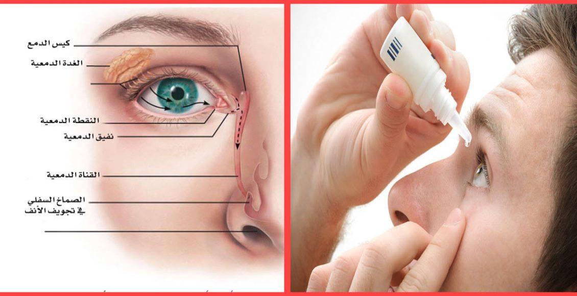 علاج جفاف العين .. تعرف علي الأسباب - الاعراض - التشخيص ونصائح هامة للوقاية