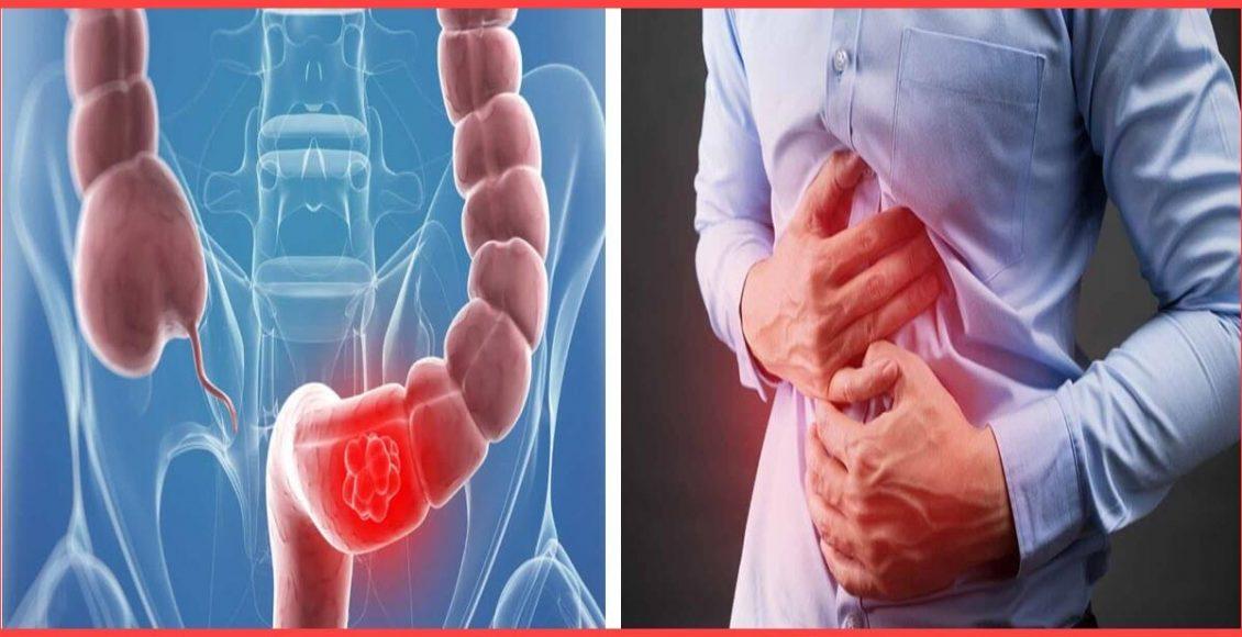 علاج ألم القولون .. مع التعرف علي الأعراض – الأسباب – التشخيص